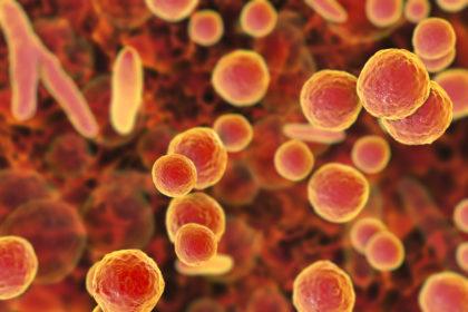 Mycoplasma Contamination