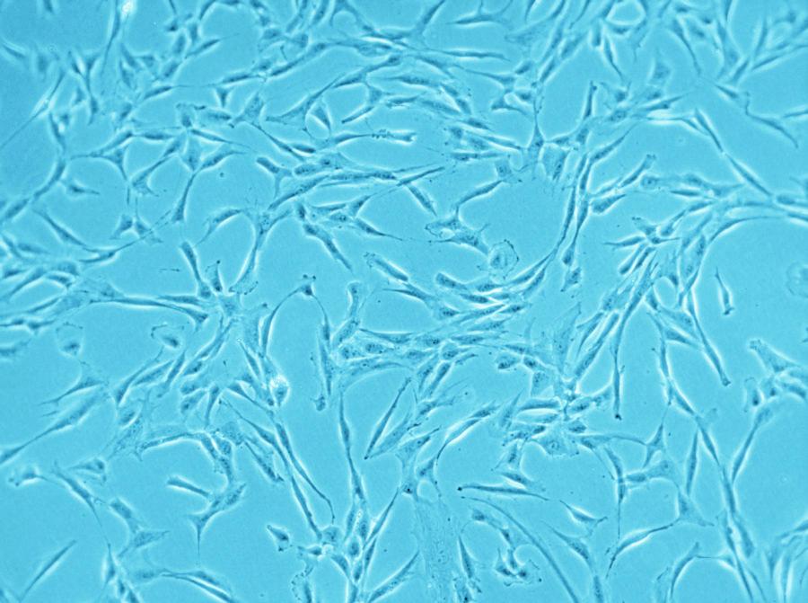 Advert Cells