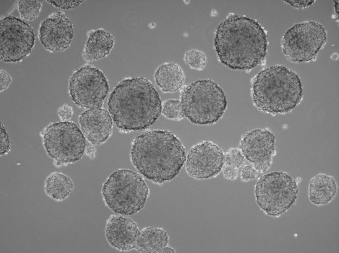 A Home for Cancer Stem Cells: 3D Tumorspheres | PromoCell - photo#18